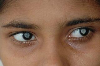 Причины и симптомы проявления каиарактяглаз