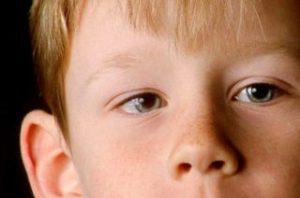 причины проявления и методы лечения косоглазия у детей