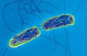 Причины и симптомы проявления брюшного тифа. Методы его лечения.
