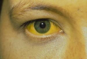 Причины и симптомы проявления желтухи
