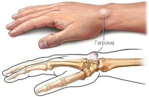 Причины и симптомы проявления гигромы