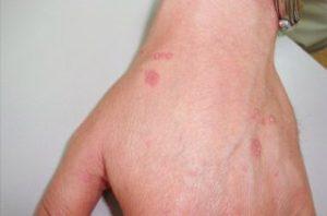 Признаки проявления розового лишая Жибера на руке взрослого человека