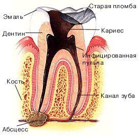 причины и симптомы проявления флюса.
