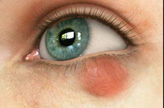 Причины и симптомы проявления глазного халязиона на верхней и нижней веке
