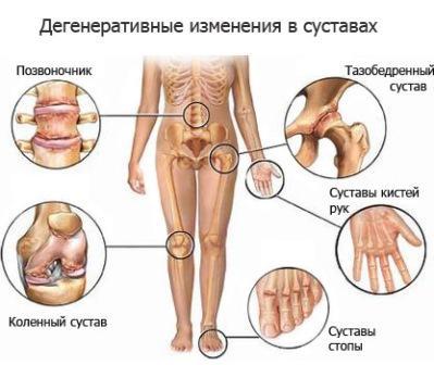 могут ли болеть суставы от паразитов