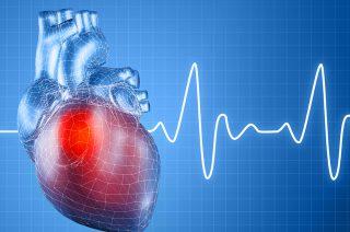 Причины и симптомы проявления мерцательной аритмии сердца