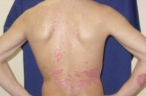Симптомы проявления псориаза на спине