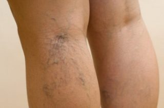 Причины и симптомы проявления варикозного расширения вен ног и его профилактика