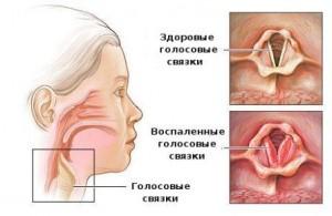 Проявление симптомов ларингита у взрослых и детей