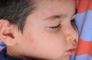 Причины и симптомы проявления крапивницы у детей