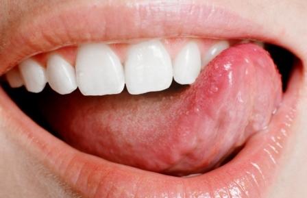Симптомы и причины проявления зубного камня.