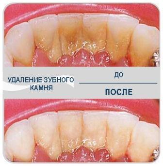 Удоление, лечение зубного камня.