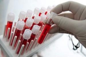 Виды проявлегния лейкоцитоза и его причины