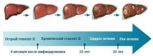 Причины и симптомы проявления гепатита В. Методы диагностики и лечения.