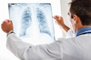 Формы и симптомы проявления плеврита легких