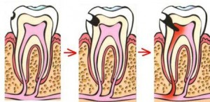 Причины и симптомы проявления пульпита зуба