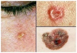Проявление и виды рака кожи