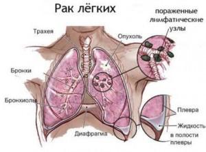 Причины и симптомы проявления рака легких