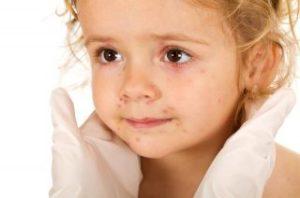 Причины и симптомы проявления скарлатины у детей