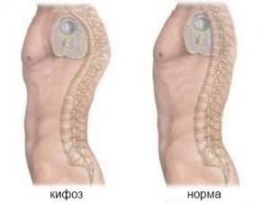 Кифоз и его способы и методы лечения