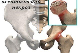 причины проявления асептического некроза кости и его методы лечения