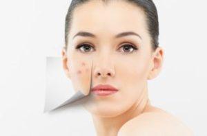 Причины и симптомы проявления розацеа на лице
