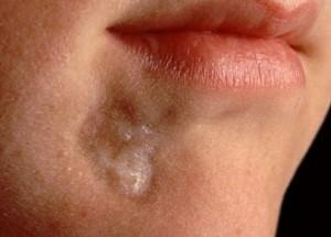 Склеродермия и ее проявление на лице