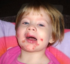 Стрептодермия и ее проявление у детей на лице