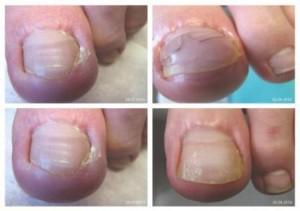 Вросший ноготь и его причины проявления и методы лечения