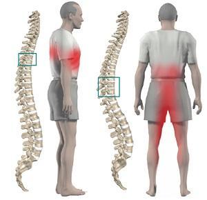 Признаки и симптомы проявления остеохондроза груди