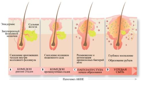 Акне: причины, симптомы, диагностика, лечение