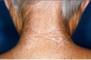 Симптомы и причины проявления ангидроза.