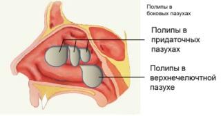 Виды и классификация заболевания.