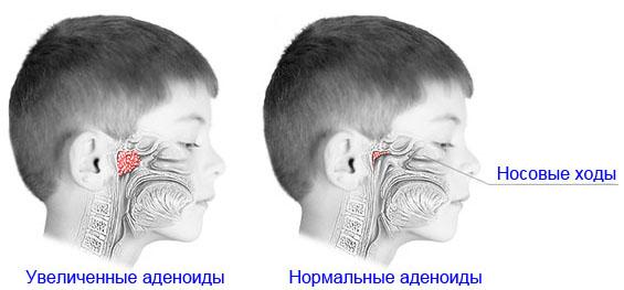 Воспаление аденоидов у детей.