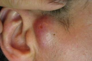 Симптомы проявления и локализация заболевания.