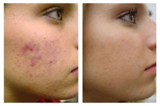 До и после лечения болезни кожи.