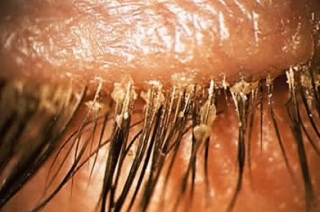 особенности протекания демодекоза глаз и век.