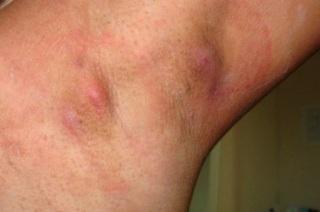 Причины проявления гидрадинита под мышкой.