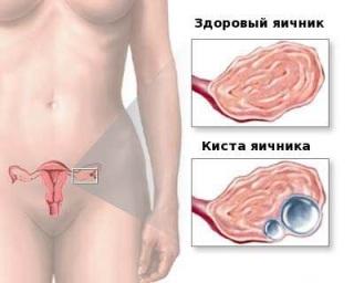 Причины проявления кисты яичника у женщин.