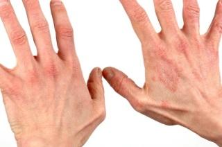 Причины и симптомы контактного дерматита.