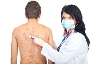 Методы и средства лечения дерматита.