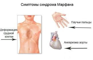 Симптомы и признаки проявления.