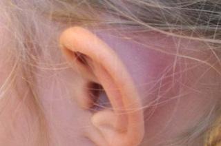 Причины и симптомы проявления мастоидита уха.