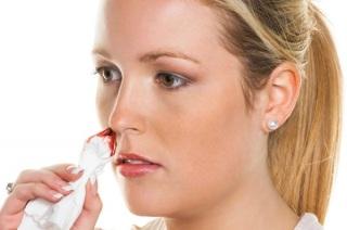 Причины носового кровотечения у детей и взрослых.