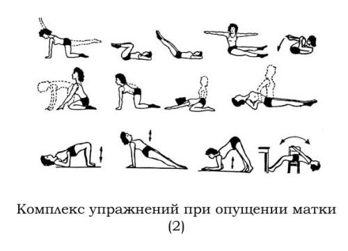 Упражнения для женщин при опущении матки или ее шейки.