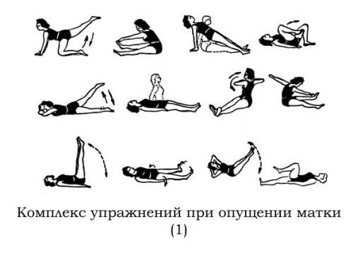 Гимнастика для женщин при опущении матки или ее шейки.