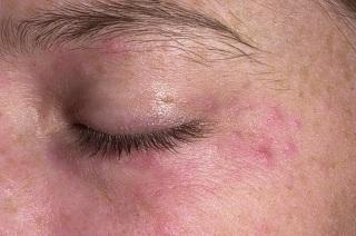 Причины проявления дерматита на лице.