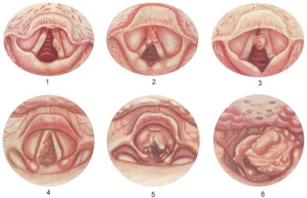 Симптомы и признаки проявления заболевания.