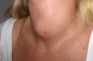 Причины проявления рака щитовидной железы.