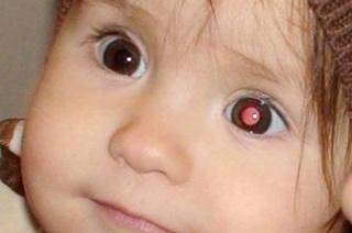 причины развития и проявления заболевания глаз.